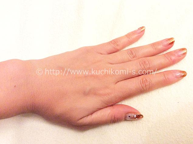 両手の甲と指 9年前お手入れ「指毛など、もう無縁」