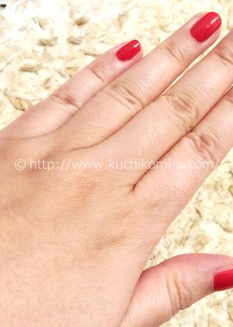 手の甲、指 2ヶ月前お手入れ「効果が出づらい手の指は産毛が生えています」